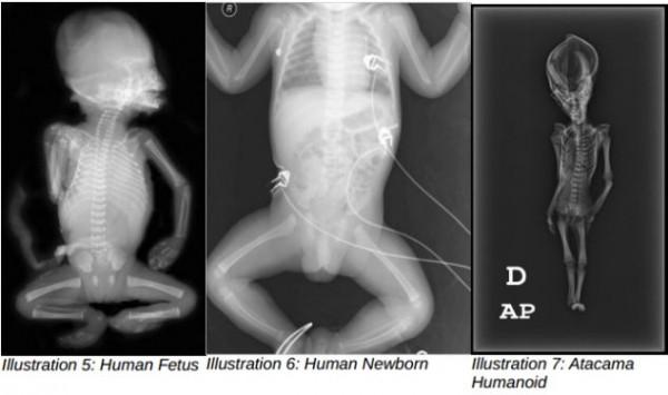 Cientistas confirmam origem de estranho e minúsculo esqueleto_3