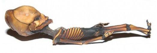 esqueleto_4
