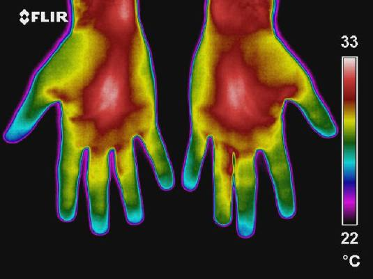 thermo-hand-1