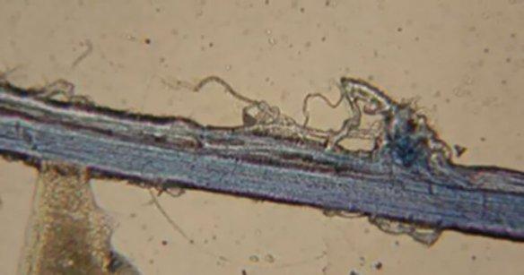 Os cientistas injectaram um corante especial que coloriu os meridianos